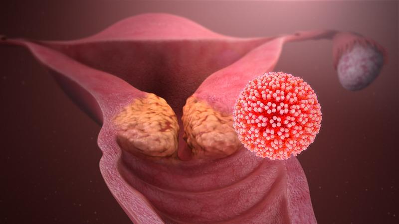 a féreggyógyszer a leghatékonyabb riboxin papillómákból