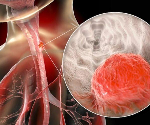 Esophageal-cancer_SH_1476704297-860x539