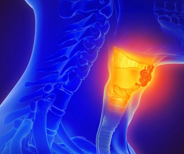 3d illustration of throat cancer